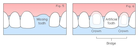 Dental Bridge - Hornsby Dental