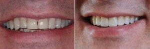 Veneers Before And After shots