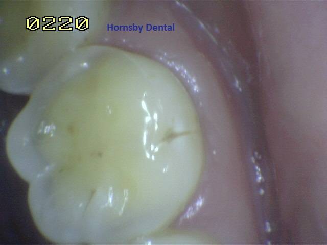 Hornsby Dental | Hornsby Dentist | Filling Case 11 Before