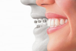Hornsby Dental_Invisalign