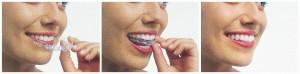 Hornsby Dentist Invisalign Trio
