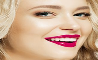 Dental Veneers at Hornsby