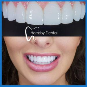 Dental veneers in Hornsby