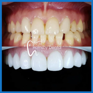 Porcelain veneers in Hornsby