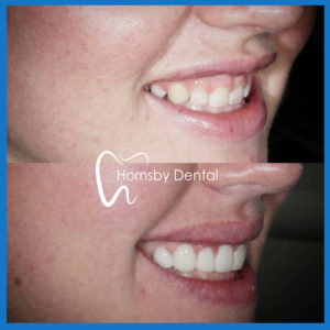 Best dental veneers in Hornsby