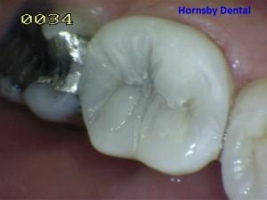 Hornsby Dental - Case 5 After Hornsby Dentist