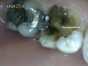 Hornsby Dental - Case 5 Before Hornsby Dentist