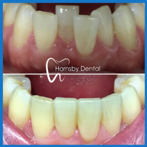 Invisalign in Hornsby