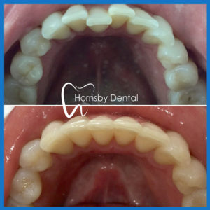 Clear braces in Hornsby