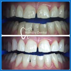 Best teeth whitening in Hornsby