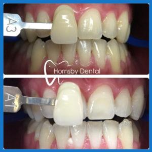 Best teeth whitening in Hornsby