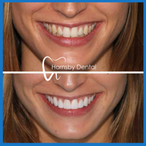 Veneers in Hornsby