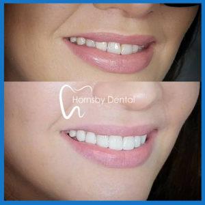 Affordable dental veneers in Hornsby