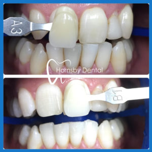 Affordable teeth whitening in Hornsby