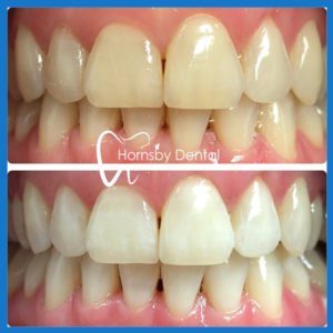 Affordable teeth whitening service in Hornsby