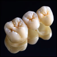 Dental Crowns - Hornsby Dentist