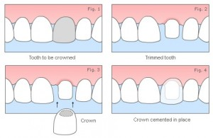 Hornsby Dental Crowns Fig 1