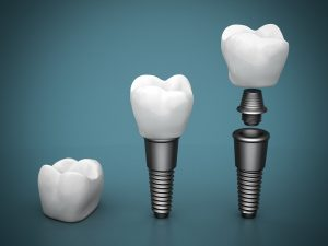 We are the best when it comes to dental implants here in Hornsby.