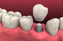 We are the best dentistry for dental implants.