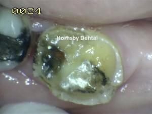 Hornsby Dental - Case 6 Before Hornsby Dentist