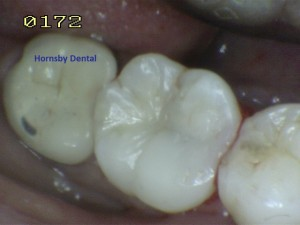 Hornsby Dental | Hornsby Dentist | Filling Case 10 After