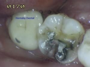 Hornsby Dental | Hornsby Dentist | Filling Case 10 Before