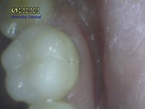 Hornsby Dental | Hornsby Dentist | Filling Case 11 After