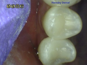 Hornsby Dental | Hornsby Dentist | Root Canal Therapy Case 9 After