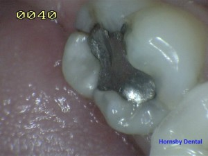 Hornsby Dental | Hornsby Dentist | Cosmetic Dentistry Case 8 Before