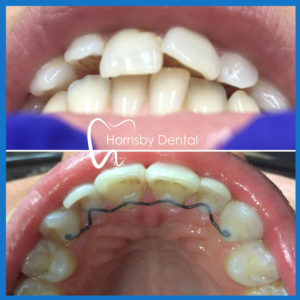 Invisalign Hornsby