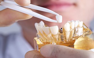 Dental Implant Sydney