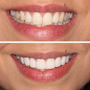 Nice pearly white teeth from our patient.