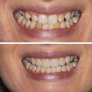 Life changing smile transformation from one of our clients.