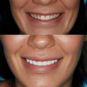 Really good before and after smile transformation with dental veneers.