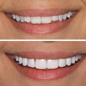 Pearly white teeth from one of our clients.