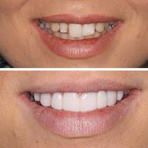 Amazing smile transformation with dental veneers.