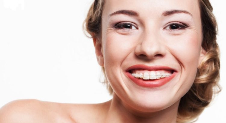 Adult braces in Hornsby