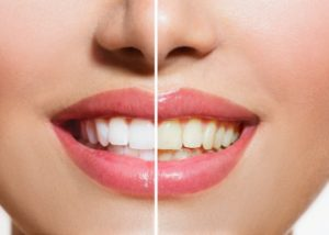 Professional teeth whitening Hornsby