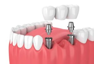 Tooth replacement in Hornsby