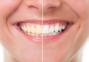 Pros and cons of teeth whitening in Hornsby