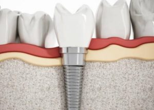 tooth implant recovery time