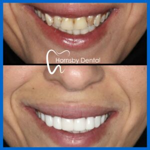 Best Porcelain Veneers in Hornsby