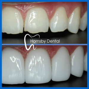 Teeth Veneers in Hornsby