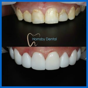 Dental Veneers in Hornsby