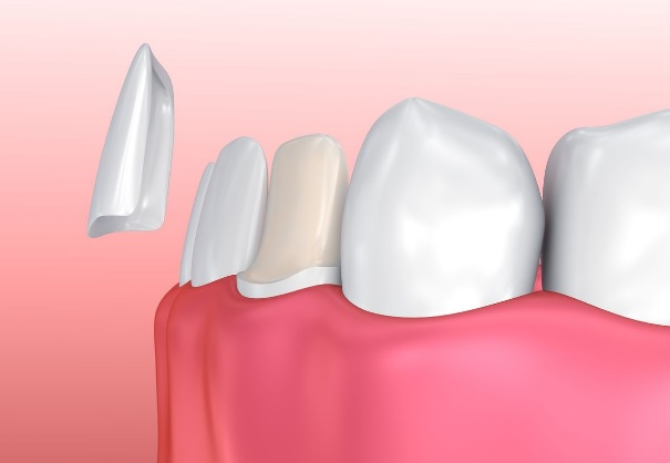 Dental Veneers Hornsby